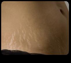 Vergeturile și pielea lăsată, afectate de pierderea în greutate