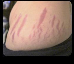 stretch marks se estompează pierderea în greutate)